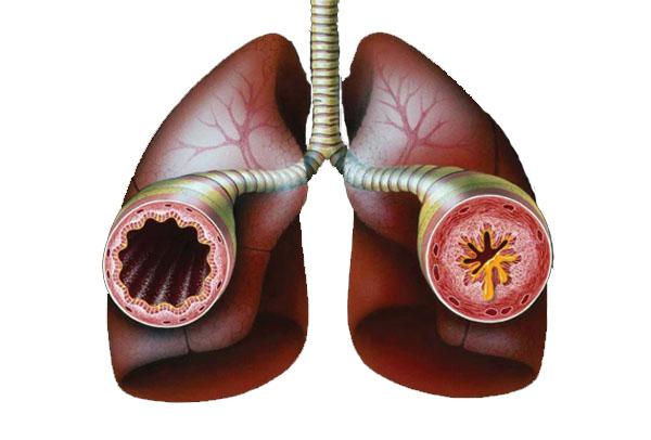 Чай поможет защитить от астмы