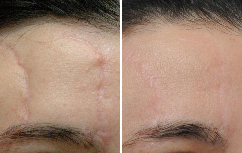 Как избавиться от шрамов на лице
